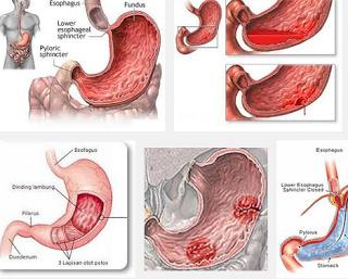 disease chronic gastritis - natural alternative medicine, Skeleton