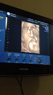 รูปภาพอัลตราซาวด์ 3 มิติของน้องตุนตังก์ ประมาณ 5 เดือน