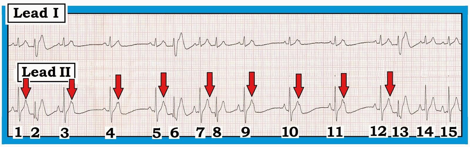 Ventricular Bigeminy Rhythm The Rhythm is Atrial Bigeminy