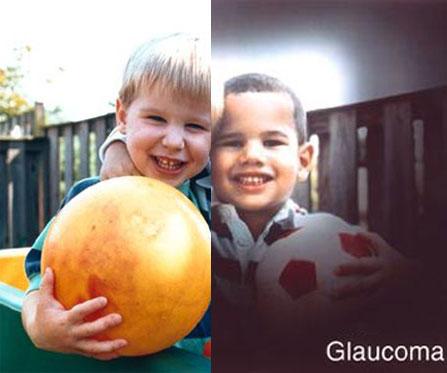 cirugía de glaucoma