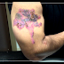 Tca Tattoo Removal - Will It Work For You?