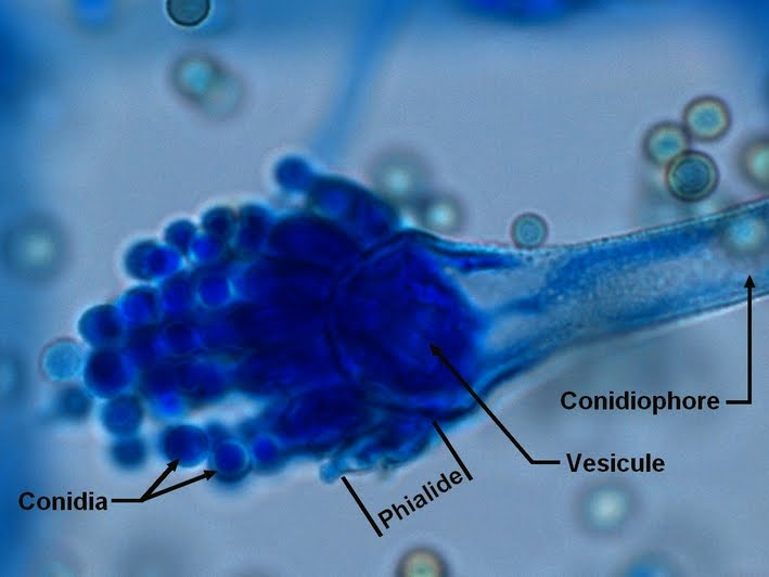 Fun With Microbiology (What's Buggin' You?): Aspergillus ...