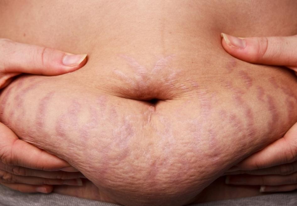 Cara Menghilangkan Stretch Mark saat hamil
