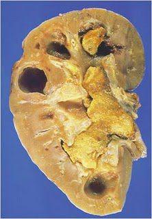 Cara mencegah gejala batu ginjal obat herbal batu ginjal tradisional