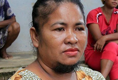 Agustin Dorman, Wanita dengan Kumis dan Jenggot, kumis cewek