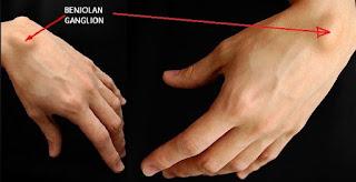 10 Cara Ampuh Mengobati Kista Ganglion Secara Alami
