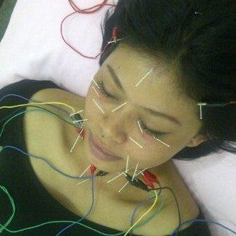 Akupuntur, Kesehatan & Kecantikan: Akupunktur Kesehatan ...