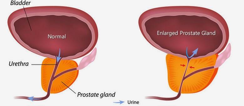 Чистотел при аденоме предстательной железы отзывы