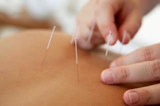 terapi akupunktur