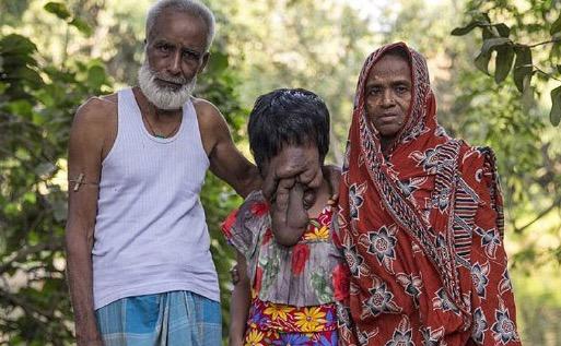 Gadis merana hidup tanpa wajah