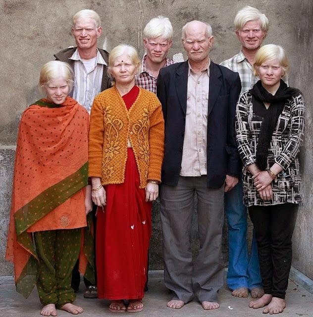 GUINNESS WORLD RECORD - Keluarga Albino Terbesar DiDunia [India]