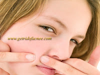 Top ten (10) tips for removing acne