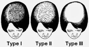 Les huiles pour les cheveux dans laigle