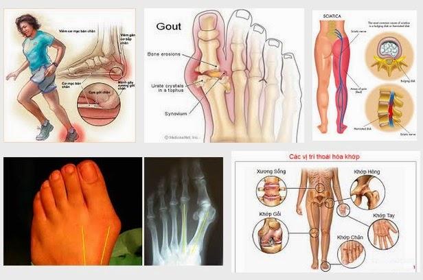 Các triệu chứng đau bàn chân gây đau chân