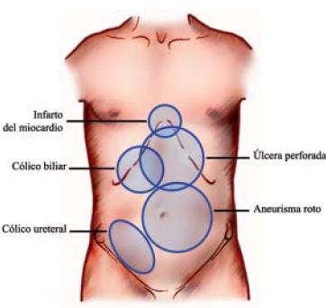 La hernia de la columna vertebral de 5 mm el tratamiento el foro