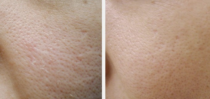 how to get rid of skin discoloration on body
