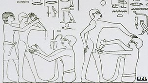 Ancient circumcision