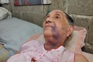 Envían a la Justicia a policías golpearon anciana e hijo