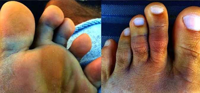 slater dedos