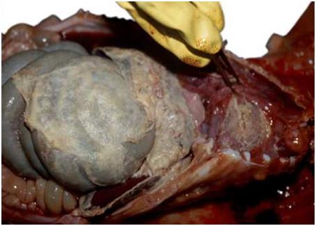 Sự hiện diện fibrin trong viêm phúc mạc và viêm màng ngoài tim