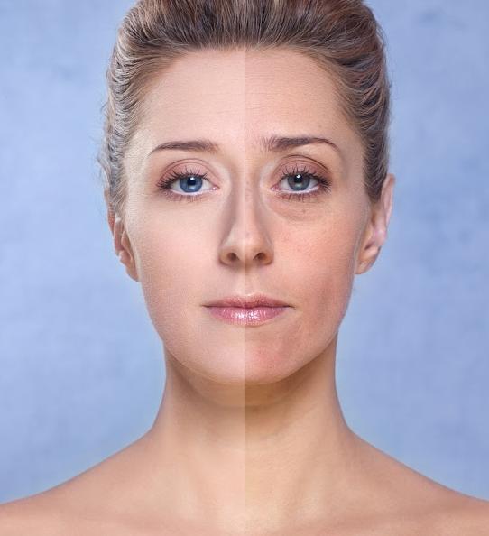 6 Tips mengatasi kulit wajah yang kusam dan berminyak