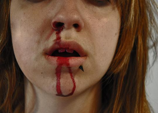 lissy alle fotografia sangue machucado garota