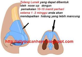 nose up asli membentuk tulang hidung dan merangsang pertumbuhan kolagen hidung dengan cepat