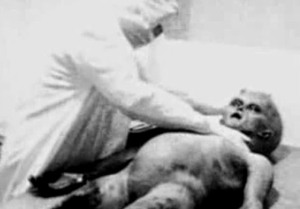A screen grab from an alleged autopsy video examining the body of an alien found at Roswell UFO crash 1947. The video surfaced in 1990's but but it was later found to be a staged reconstruction of what Ray Santilli, a London-based entrepreneur, claimed was a re-enactment of a older video he had witnessed