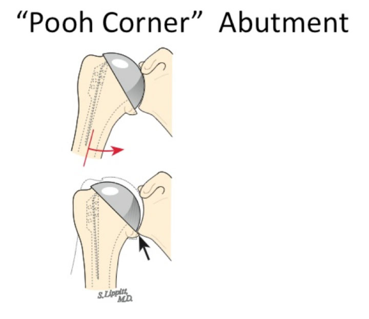 Shoulder Arthritis / Rotator Cuff Tears: causes of shoulder pain