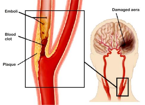 Stroke Akibat Penyumbatan Pembuluh Darah