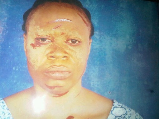 Man Batters Wife, Throws Her Out For Rejecting Custody Of Love Child