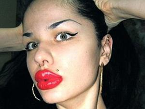 Wanita Ini Miliki Bibir Raksasa
