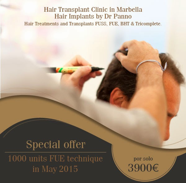 special-offer-hair-transplant-fue-technique-may