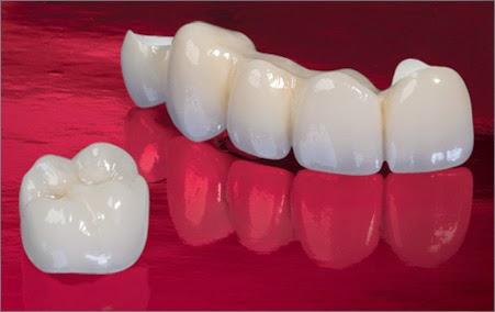 http://dentalimplantsindia.org/treatments-offered/aesthetics/zirconium/