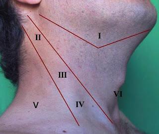 Tumores de cabeza e cuello