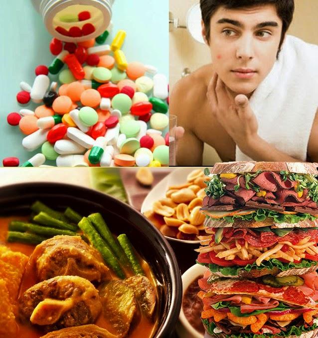 Makanan Yang Menimbulkan Jerawat