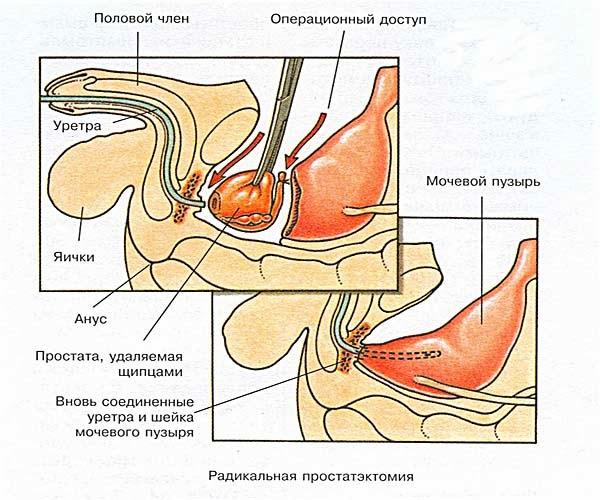 Ректальное исследование предстательной железы осложнения широкие показания противопоказания