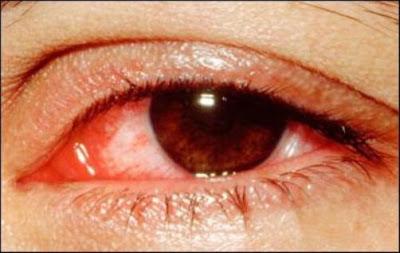 Cách chữa trị bệnh dị ứng ở mắt
