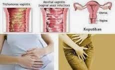 obat keputihan normal
