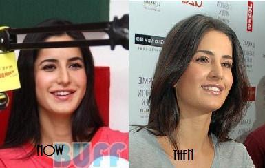 Katrina Kaif Before And After Nose Katrina Kaif before an...
