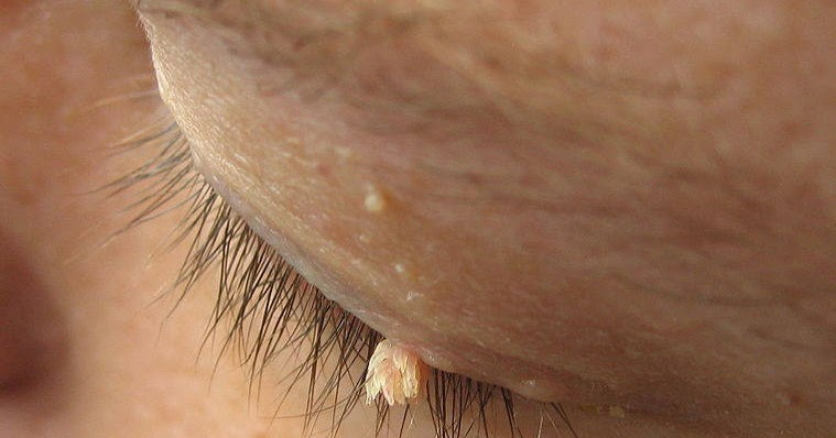 how to get rid of warts on neck