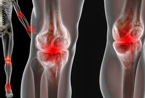 Why aching joints? Causes of joint pain