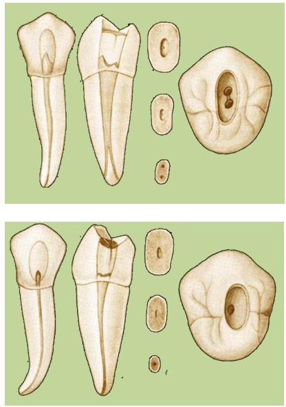 Dr. Miguel Irala - Odontología Moderna: ENDODONCIA