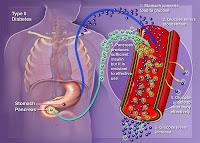 Diabetes melitus merupakan penyakit yang ditandai oleh tingginya kadar gula dalam darah.