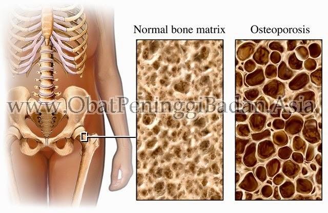 Kalsium Mengatasi Dan Mengobati Osteoporosis Manfaat Kalsium Selain Menyehatkan Tulang Susu NHCP NCP Vitamin Suplemen Alami Herbal Keropos Tulang Kepadatan Tulang Sakit Nyeri Tulang Tua Osteoarthritis. Klinik