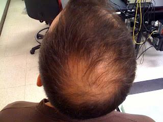 jenis kebotakan rambut,kebotakan rambut,rambut botak, mengatasi kerontokan rambut, mengatasi kebotakan rambut