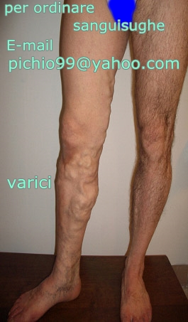 Varicosity a obesità