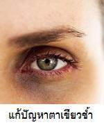 แก้ปัญหาตาเขียวช?้ำ