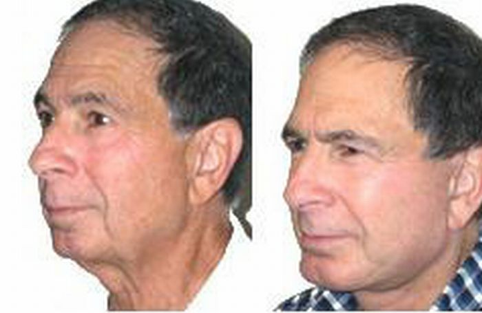 How Do Men Get To Look Younger Organically Try These Smart Hints