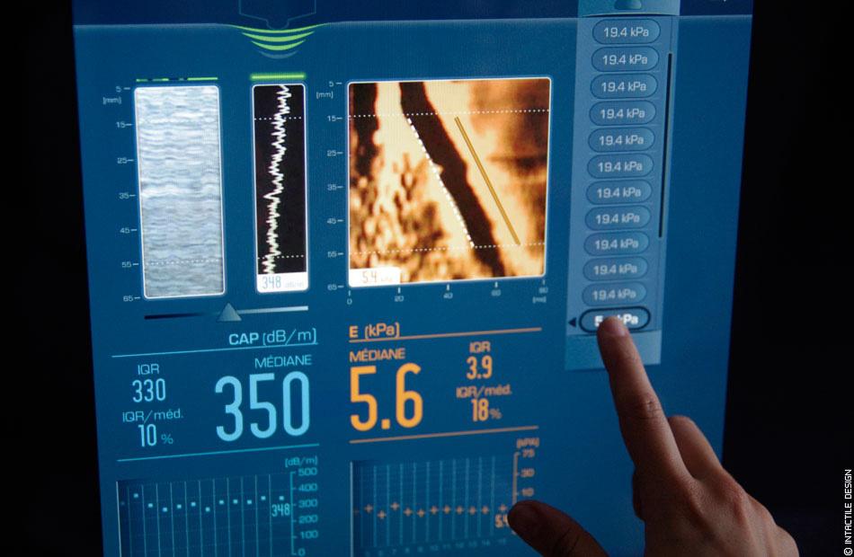 fibroscan machine cost